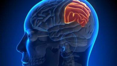 Photo of دراسة: الليثيوم قد يعكس الضرر الإشعاعى بعد علاج أورام المخ