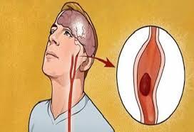 Photo of كيف تحمى نفسك من الإصابة بالجلطات