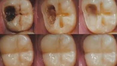 Photo of نصائح هامة للحفاظ على الاسنان