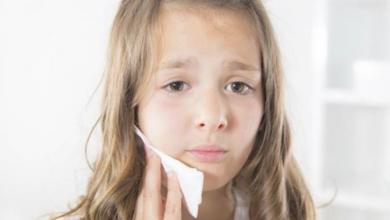 Photo of أسباب وأعراض.. ألم الأسنان عند الأطفال