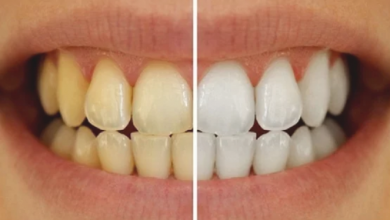 Photo of وصفة قوية لتبيض الاسنان والحماية من الاصفرار