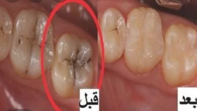 Photo of تعرف على فوائد تنظيف الأسنان