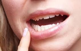 Photo of تعرف على 7 أسباب لجفاف الفم