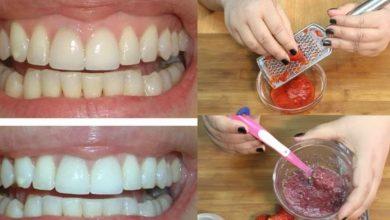 Photo of طريقة استخدام الفراولة في تبييض الأسنان
