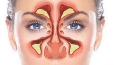 Photo of علاج الجيوب الأنفية.. بالأعشاب تخلص من الالتهاب والصداع