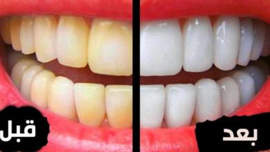 Photo of بـ 5 جنيهات.. وصفة سريعة لتبييض الأسنان