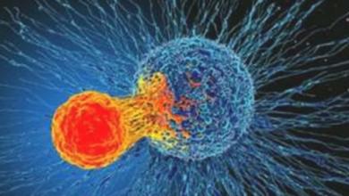 Photo of في اليوم العالمي للسرطان .. تعرف على أكثر الأنواع شيوعًا بين السيدات