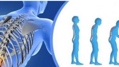 Photo of حيل تساعد في التخلص من هشاشة العظام