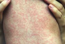 Photo of أبرزها التهاب الكبد الوبائي.. دراسة: الحصبة تصيب بأمراض قاتلة..