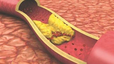 Photo of عشبة مهملة تحميك من السكر والكوليسترول بدون أدوية