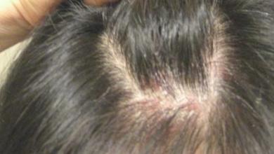Photo of 6 علامات تحتم زيارتك طبيب الجلدية حالا
