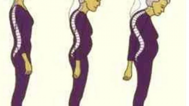 Photo of السيدات أكثر عرضة للإصابة بهشاشة العظام لهذا السبب