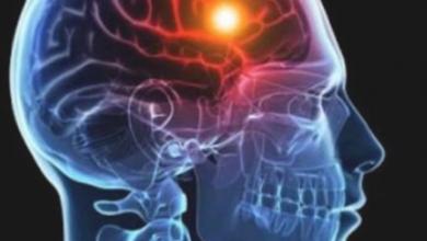 Photo of دراسة: الصدمة في مرحلة الطفولة تغير وظائف الدماغ