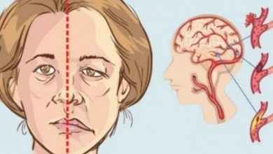 Photo of الجلطة الدماغية.. أعراض تحذيرية انتبهى لها قبل فوات الأوان