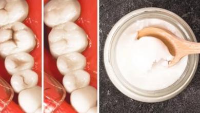 Photo of نوع مهمل من التوابل يخلصك فى ثوان من إصفرار الأسنان