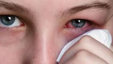 Photo of أعراض تؤكد إصابتك بالرمد الربيعي.. تعرف عليها
