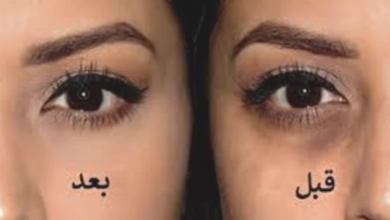 Photo of وصفة خارقة تخلصك من الهالات السوداء