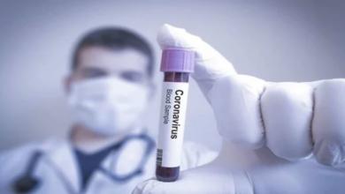 Photo of 450 إصابة جديدة و37 وفاة بفيروس كورونا في المكسيك