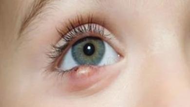 Photo of 5 حيل طبيعية .. علاج الكيس الدهني بالعين في 4 أيام..تفاصيل