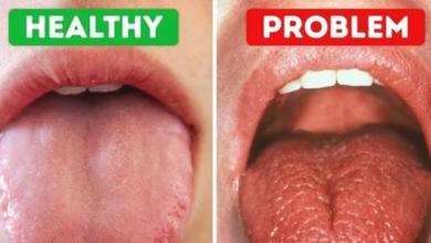 Photo of طرق لعلاج جفاف الفم.. تعرف عليها