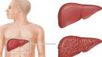 Photo of تعرف على أسباب التهاب الكبد الوبائي وطرق الوقاية