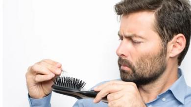 Photo of للرجال.. وصفات طبيعية تخلصك من تساقط الشعر فى أقل وقت