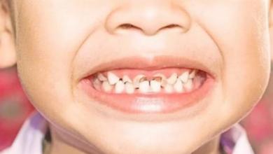 Photo of تجنبها فورا .. 3 عادات يومية تدمر الأسنان