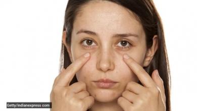 Photo of علاجات طبيعية للتخلص من الأكياس تحت العين والهالات السوداء