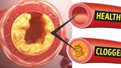 Photo of نوع مهمل من الفواكه يحارب الكوليسترول