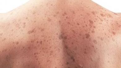 Photo of تعرف على العلامات المبكرة لسرطان الرئة عند الرجال