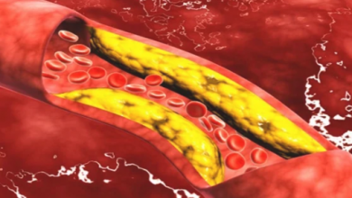 Photo of 7 أطعمة تسبب ارتفاع نسبة الكوليسترول فى الدم