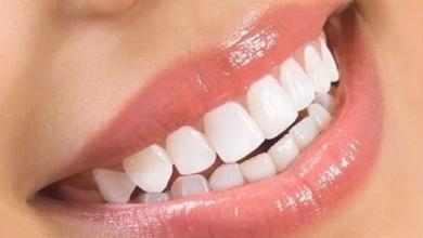 Photo of تعرف على فوائد ملح الليمون لتبييض الأسنان