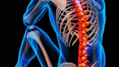 Photo of لمرضى هشاشة العمود الفقري.. 3 طرق طبيعية لعلاجه