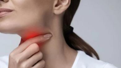 Photo of كيف تفرق بين السعال والتهاب الحلق والإصابة بـ كورونا.. دراسة تجيب