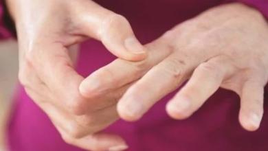 Photo of آثار لـ التهاب المفاصل الروماتويدي على الصحة