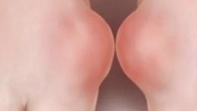 Photo of نصائح لعلاج مرض النقرس والتخلص من الألم