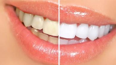 Photo of 3 وصفات طبيعية لتبييض الأسنان الصفراء