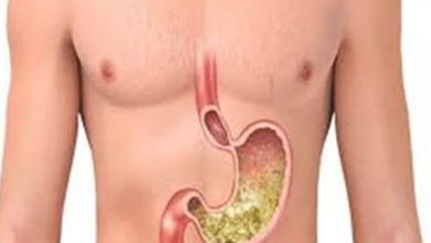 Photo of طرق علاج قرحة المعدة