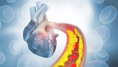 Photo of نوع من البذور يحميك من الكوليسترول وأمراض القلب