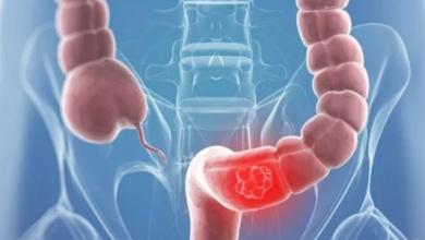 Photo of أعراض تحذيرية لسرطان القولون