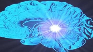 Photo of أنواع أورام المخ
