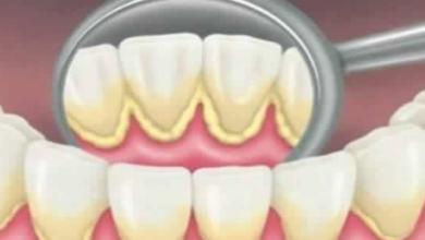 Photo of طريق علاج الجير وحماية الأسنان واللثة والقلب