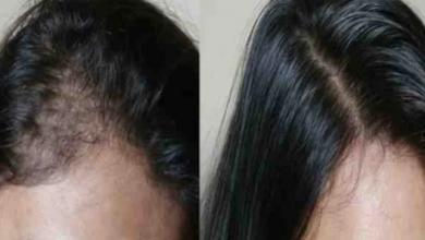 Photo of 3 وصفات لعلاج تساقط الشعر