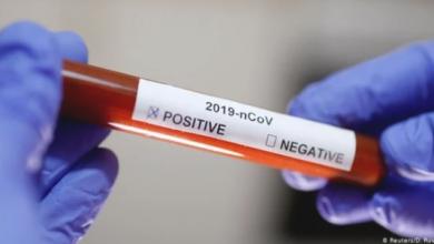 Photo of في 30 دقيقة فقط.. دراسة تكشف عن اختبار جديد لـ فيروس كورونا