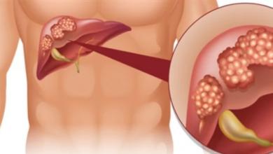 Photo of أسباب الخفية وراء انتشار سرطان الكبد