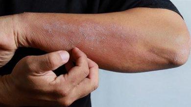 Photo of أعراض جديدة لفيروس كورونا تظهر على الجلد