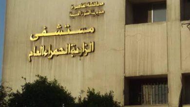 Photo of مستشفي الزاوية العام تنجح في إجراء جراحة استئصال ورم ليفي متشعب